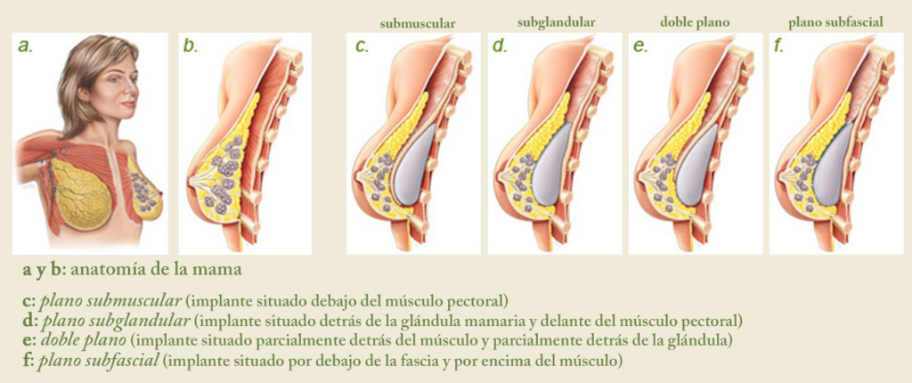 Aumento de pecho – Clínica Doctor Pedro Antolín