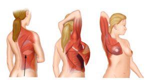 Colgajo de la espalda Latissimus Dorsi
