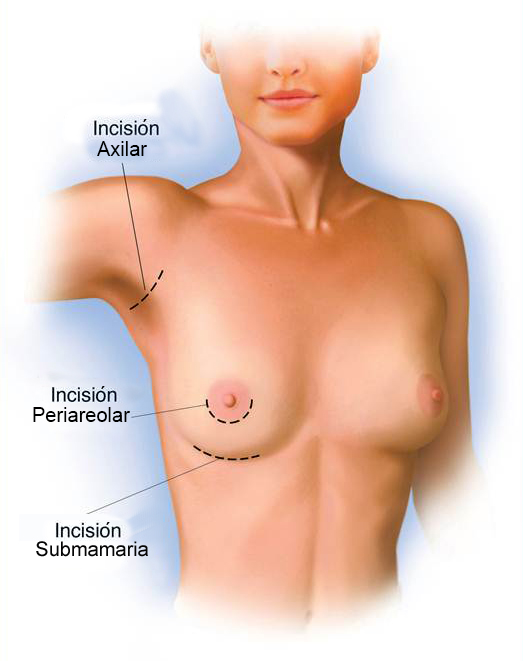 vías de abordaje y cicatrices en aumento de pecho