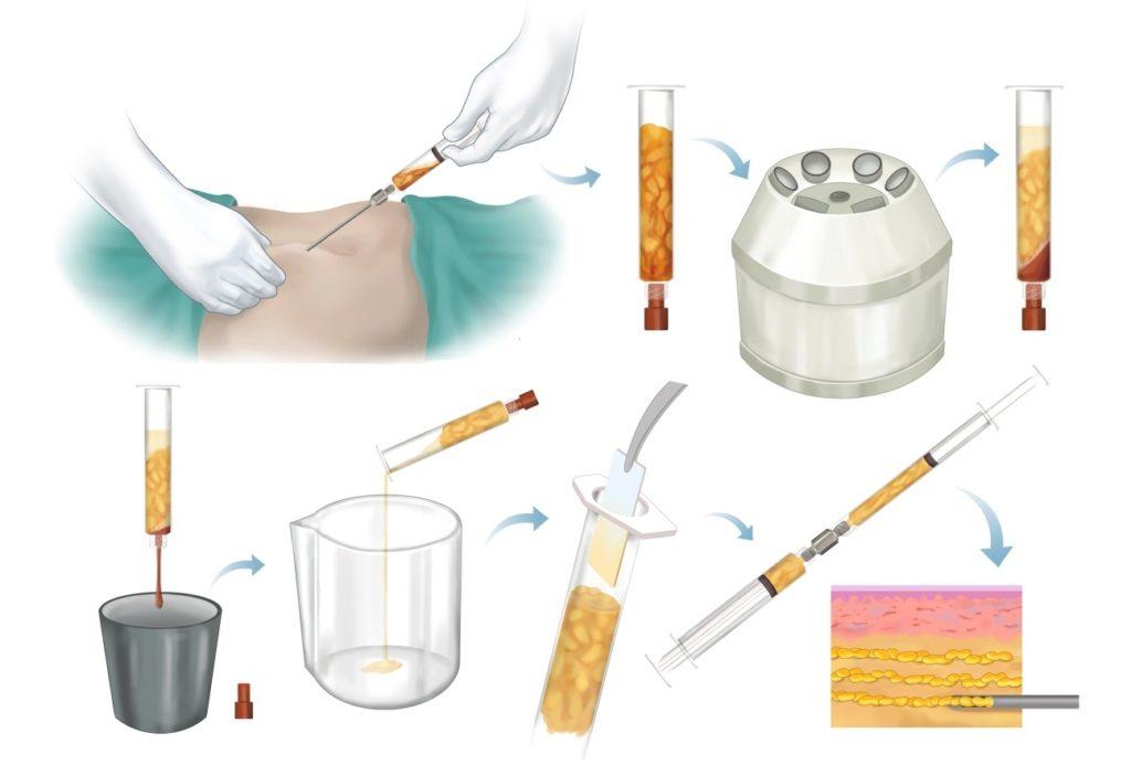 proceso para los rellenos con grasa en Valencia y Alcoy Dr. Antolín