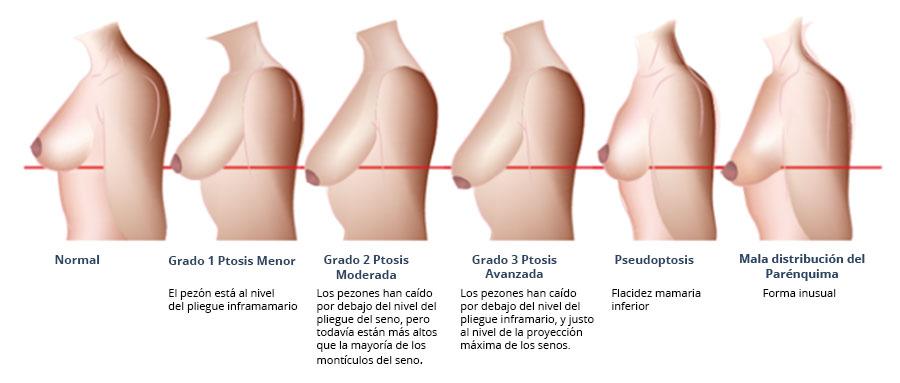 grados de pstosis de los pechos o mamas