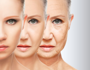 Rellenos faciales con acido hialuronico para mejillas y mentón en Valencia y Alcoy