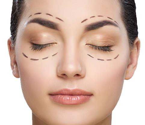 Cirugia de parpados superiores o inferiores Valencia y Alcoy Dr.Antolin