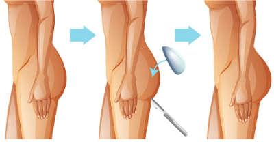 Como se hace la operacion de aumento de gluteos con implantes
