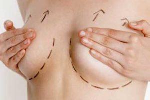 la mastopexia eleva el pecho caido