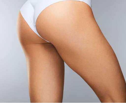 Lifting de muslos en Valencia: elimina exceso de piel y grasa con el Dr.Antolín