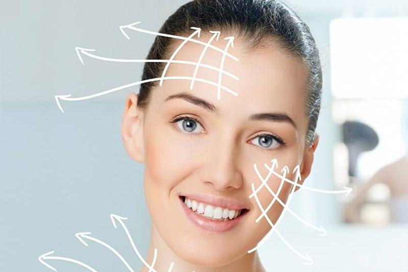 Lifitng facial con radiofrecuencia