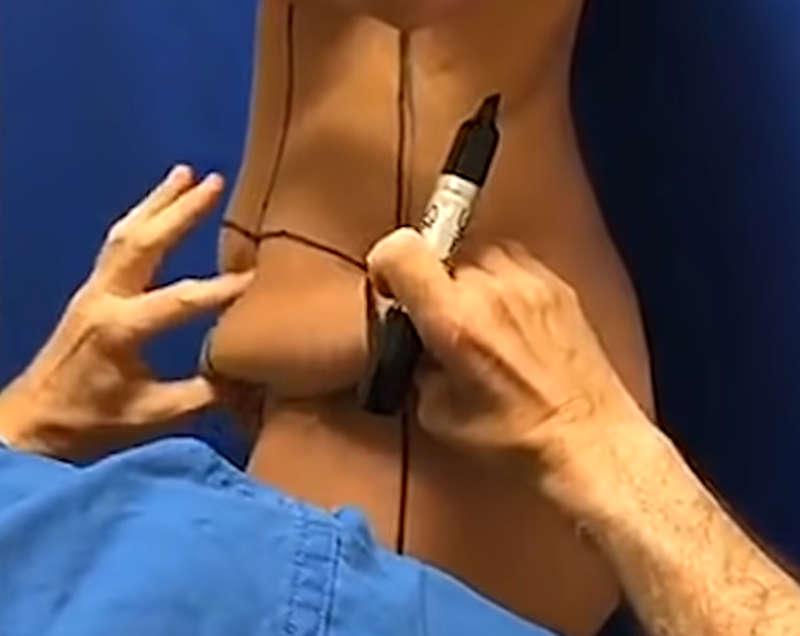 que es un lifting corporal en Valencia: diseño quirurgico