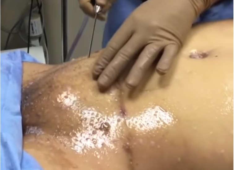 liposuccion para la reducción del pubis o monte de Venus
