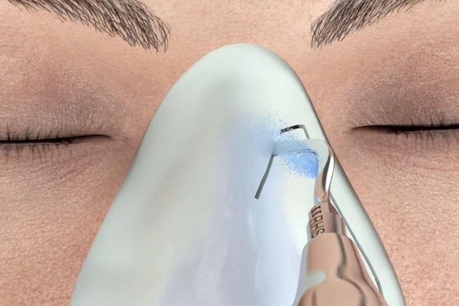 operación de nariz ultrasonica por el mejor cirujano de Valencia Dr. Antolín